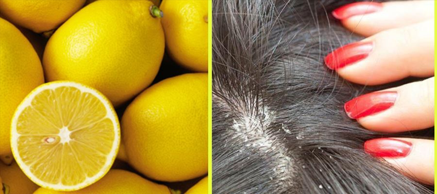 How to get rid of Dandruff naturally?